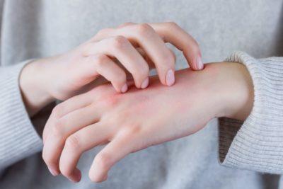 Leia as etiquetas bordadas e evite os tecidos que causam alergias