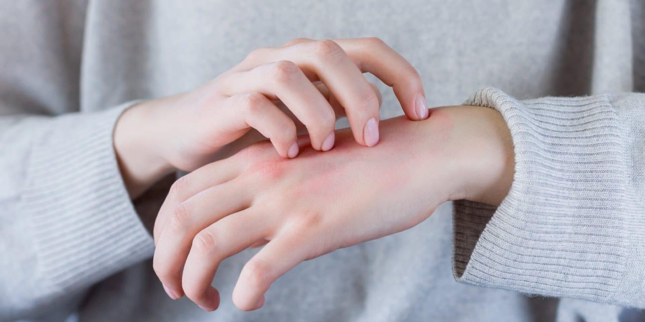 Leia as etiquetas bordadas e evite os tecidos que causam alergias.